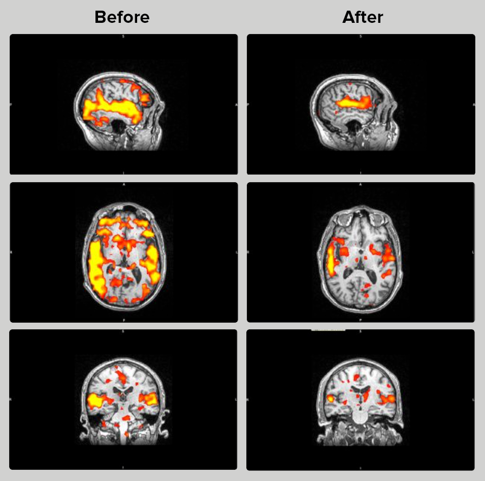 Tinnitus-before-after-fmri